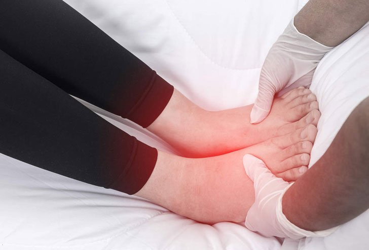 10-common-causes-of-swollen-feet_1